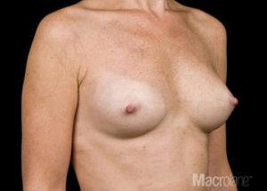 Modelowanie ciała MACROLANE