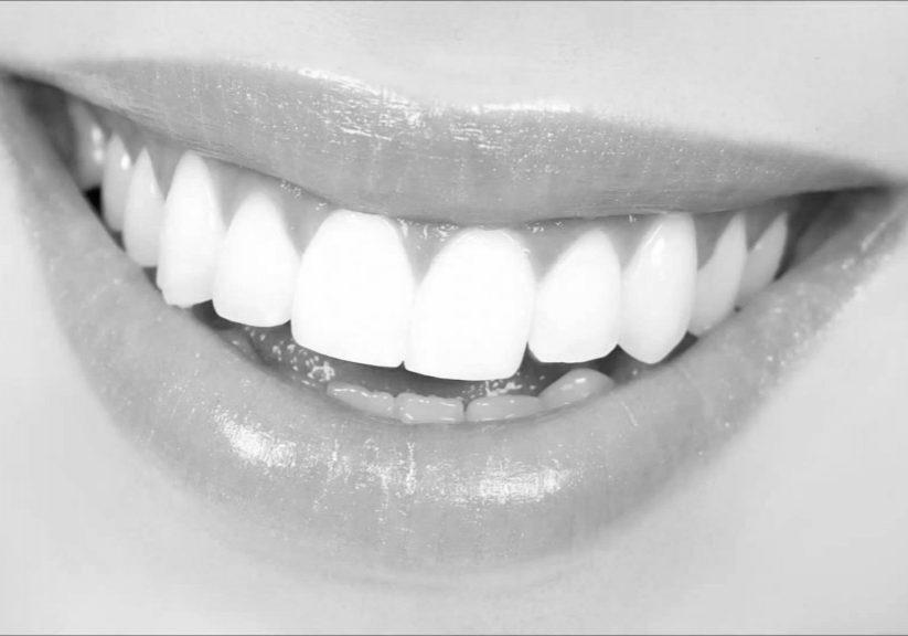 Piękny biały uśmiech Salon Afrodyta